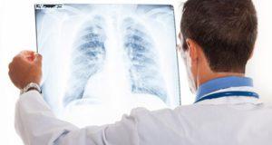 Врач смотрит на рентген