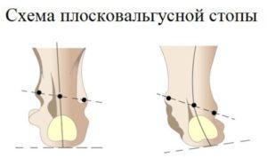 Искривление стопы