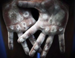 Руки с магнезией