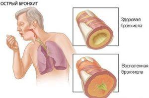 Воспаление бронхиол
