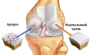 Болезненность колена