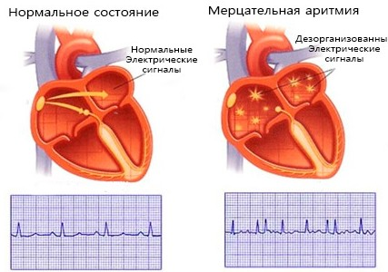 Сердце при сбое ритма