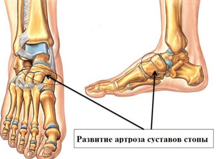 Физиотерапия на суставе ступни лфк упражнения при импиджмент-синдроме плечевого сустава