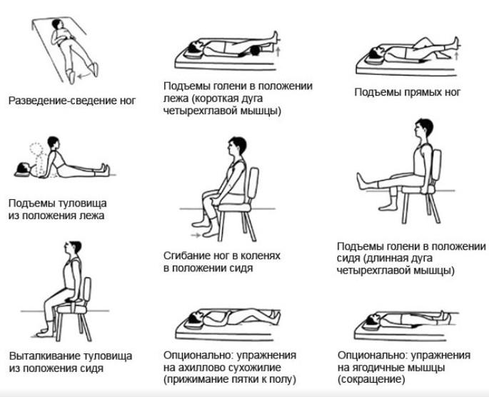 Лфк после эндопротезирования тазобедренного сустава видео растяжение мышц коленного сустава сколько заживает