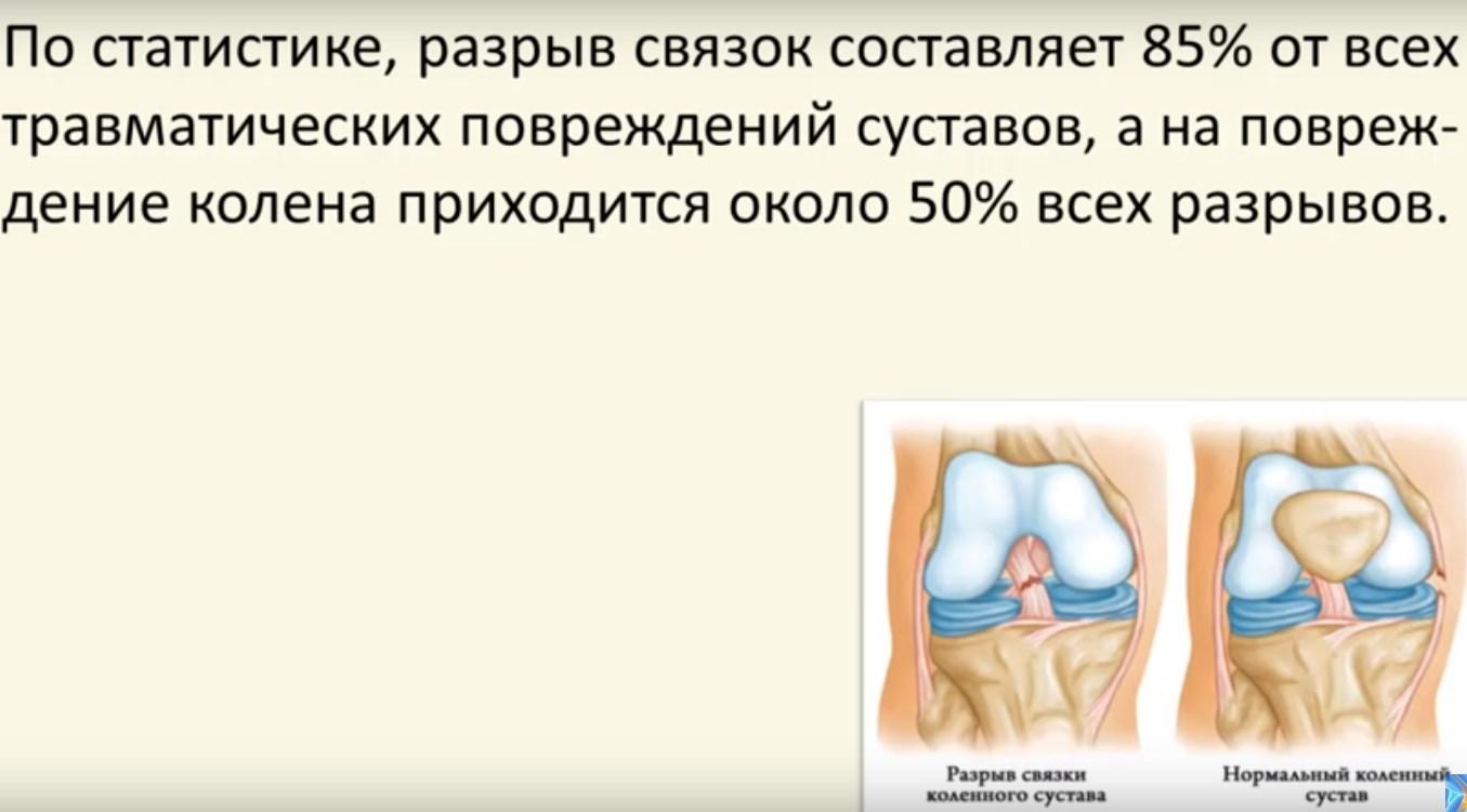 Изображение - Лфк при разрыве связок коленного сустава %D0%A2%D1%80%D0%B0%D0%B2%D0%BC%D0%B0-2